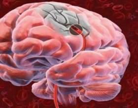 Алкогольная энцефалопатия – поражение головного мозга фото