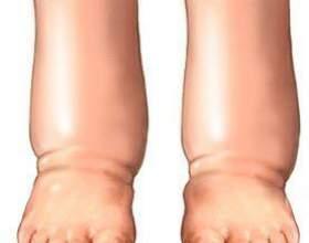 Почему болят ноги с похмелья? фото