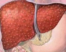 Препараты для лечения цирроза печени фото